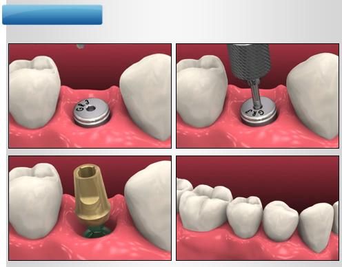 İmplant Diş Markaları