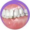Dental Malocclusions