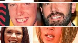 Ön diş eksikliğinde implant tedavisi