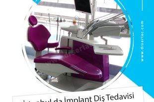 İstanbul da İmplant Diş Tedavisi