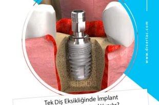 Tek Diş Eksikliğinde İmplant Diş Uygulaması Nasıl Yapılır?