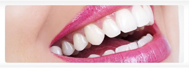implant istanbul diş