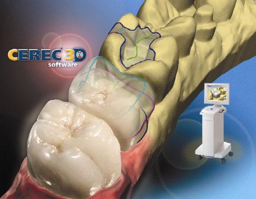 Estetik diş dolguları amalgam dolguların uygulama alanını ortadan kaldrmıştır.