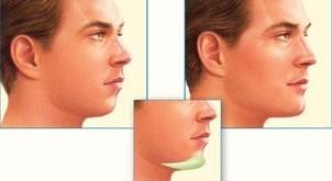 Çene Hastalıkları ve Cerrahisi
