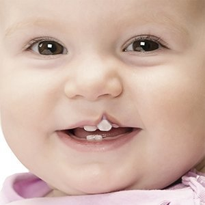 clift-lip-palate-treatment-img