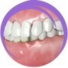 Dental Malocclusions