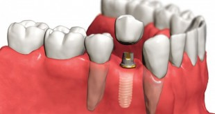 placing implant
