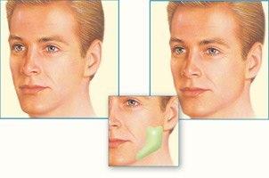 jaw-implant