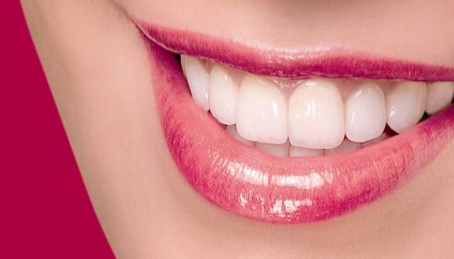 Estetik Diş ile Gülümseyin