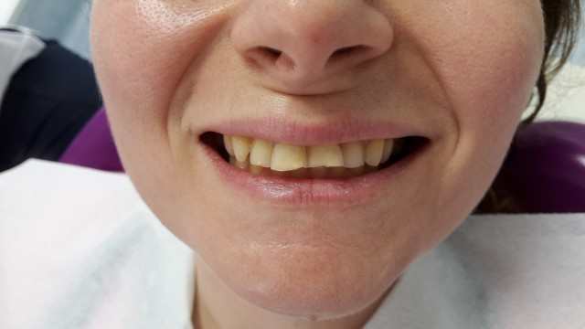 Diş Aşınması Tedavisi