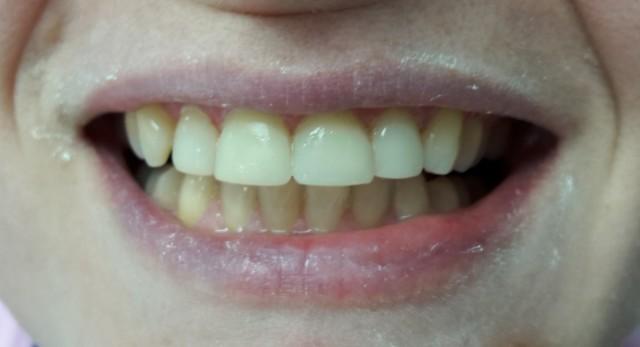 Diş Aşınması Tedavi Saonrası