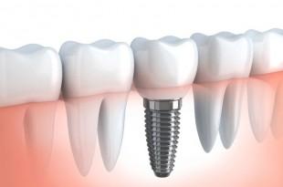 İmplant Diş Kliniği İstanbul