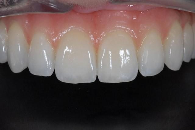 İmplant Diş Kliniği 0212 6616979