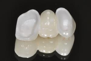 İstanbul İmplant Diş Kliniği 0212 6616979