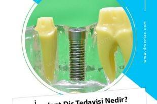 İmplant Diş Tedavisi Nedir?